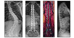 Adult Spinal Deformity - 1