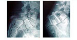 Reduction of High Grade Spondylolisthesis - 1